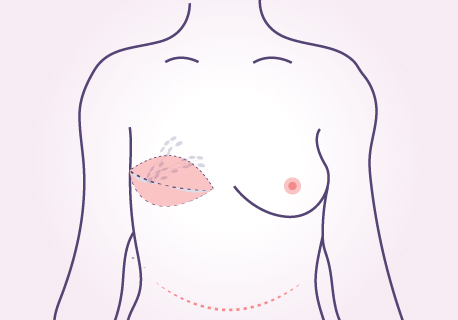 breast reconstruction using your own fat